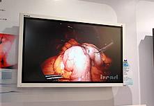优派手术/内窥镜显示器VM4201e