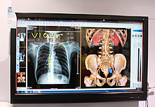 优派医疗会诊显示器VM7011T