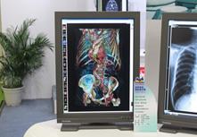 优派医疗诊断显示器VM2133c3