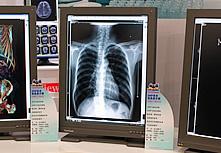 优派医疗诊断显示器VM2130m3